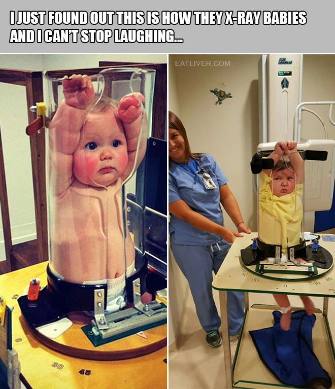 I just found out this is how they x-ray babies and I can't stop laughing...