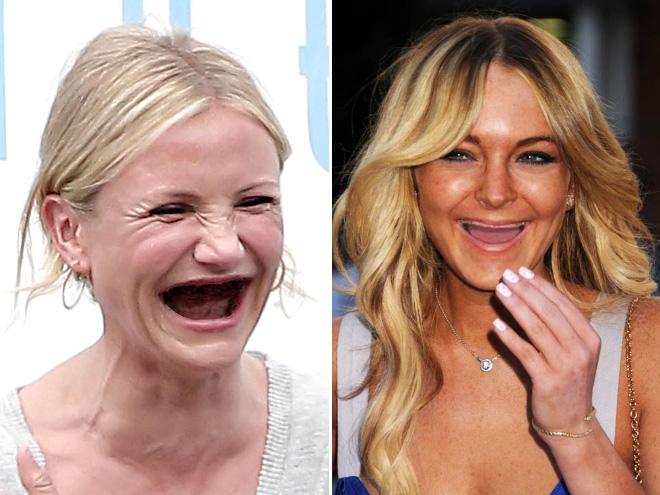 If celebrities used meth...