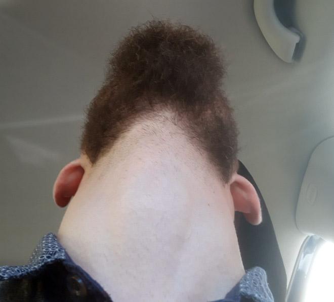 Man revealing his under beard face.