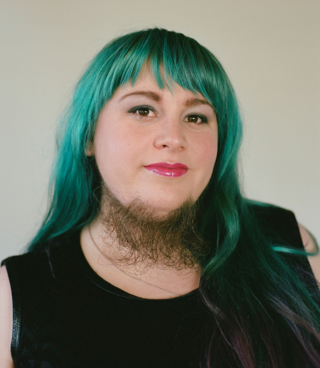 Did you know that some women can grow beards?